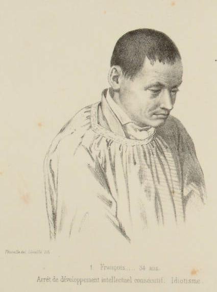 """""""Francois. 34 ans. Arret de Developpement intellectuel conscentif. Idiotisme."""" From 'Traites des Degenerescences', by Morel (1857)"""